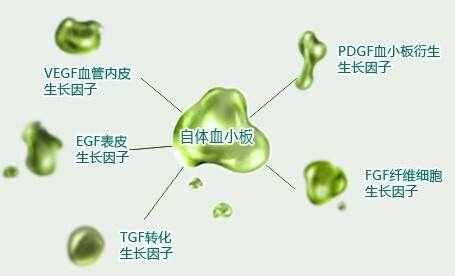 上海开眼角开大需要花多少钱呢