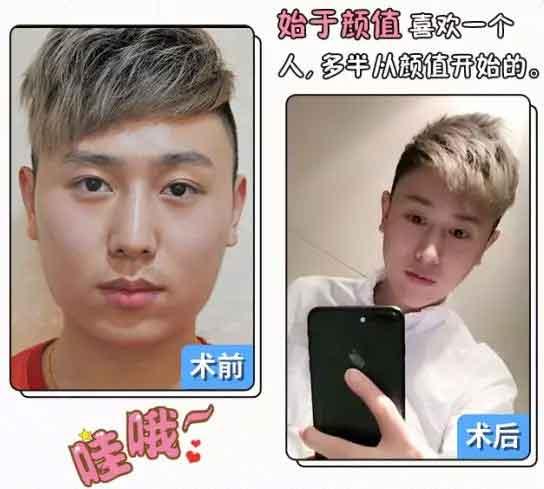 上海医院激光脱毛是较久的吗