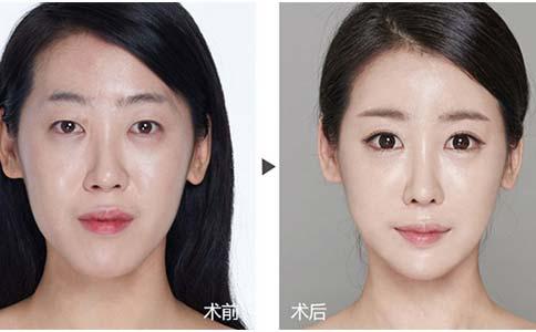 上海眼部除皱的好方法有几种?