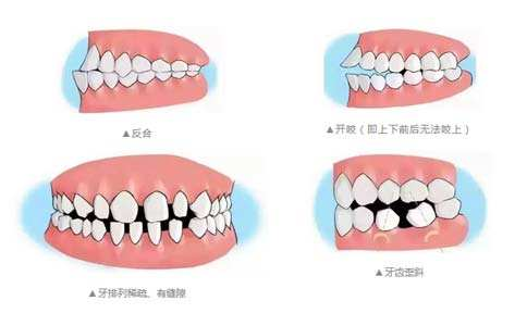 上海全鼻再造整形的效果怎么样?