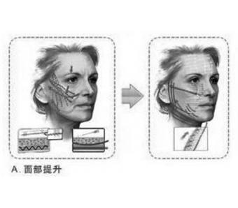 美莱假体隆鼻手术流程,是什么样子的