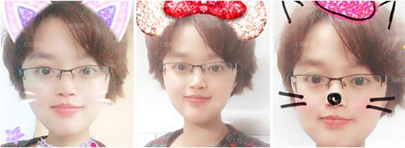 上海隆鼻的方式有哪些,什么方式比较好?