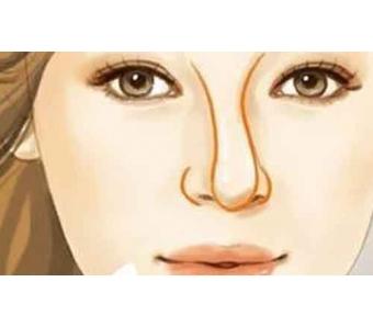 美莱打一次瘦脸针能管多久〢多可以注射几次