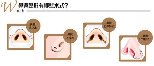 上海祛眼袋哪家好,手术祛眼袋效果能维持多久呢
