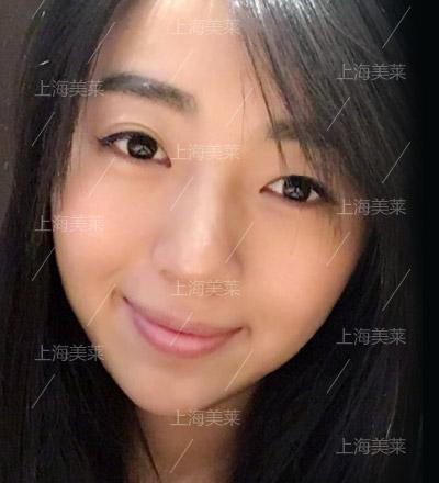 上海隆鼻医院注射玻尿酸隆鼻会有残留吗