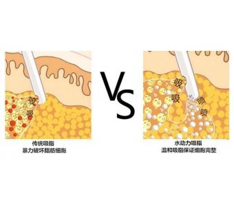 上海整形做自体脂肪隆胸费用需要多少