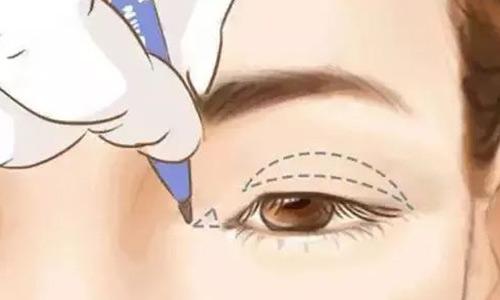 """美莱隆鼻手术让你""""改头换面"""""""