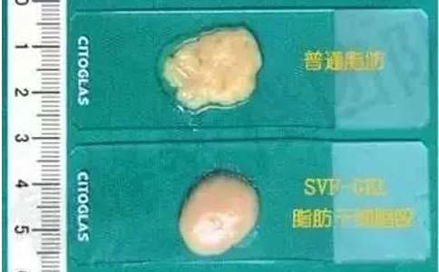 美莱气泡氧4大嫩肤功效修复改善,深层补水缩小毛孔!