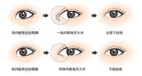上海隆鼻有哪几种方法,怎么选好呢
