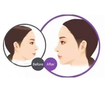 上海自体软骨隆鼻保持多久,会不会出现后遗症!