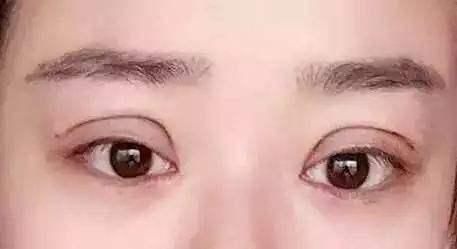 美莱激光祛雀斑和祛痣的效果好不好?