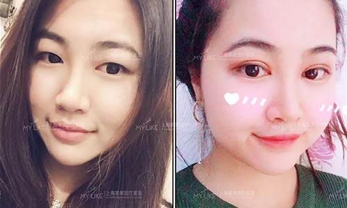 上海激光嫩肤好不好-同时可以缩小毛孔吗