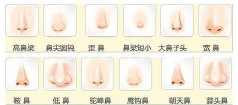 上海注射隆鼻能保持多久,能保持一年时间吗?