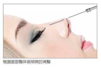 上海假体隆鼻的医院哪家好,安全值得保障呢?