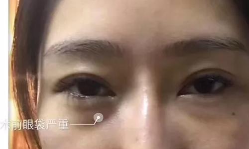 上海自体肋骨隆鼻缺点是什么?