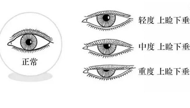 上海一般做缩小鼻翼手术多少钱