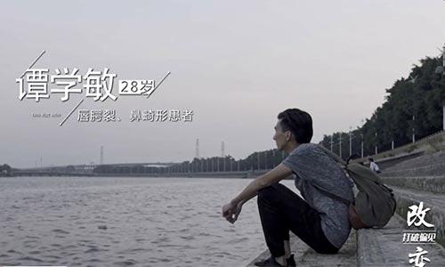 上海假体隆鼻能保持多少年,注意事项有哪些?