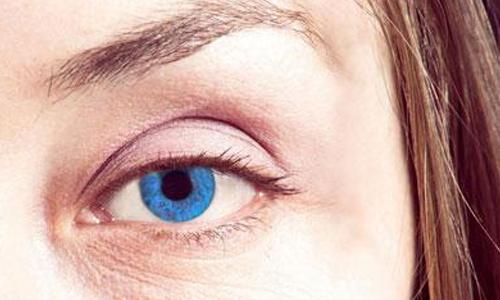 去除眼部鱼尾纹美莱玻尿酸去除效果如何