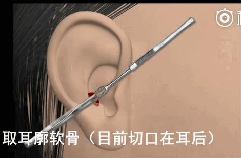 上海隆胸医院做丰胸手术有哪些常见不良后果