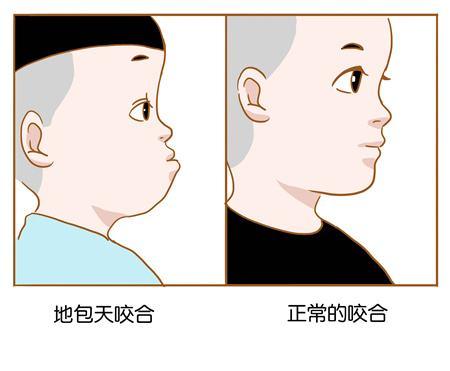 上海美莱整形打了瘦脸针见效快吗