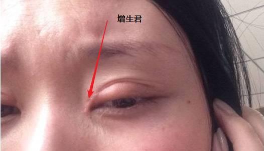 上海割双眼皮到底有多痛∷会打麻醉吗?