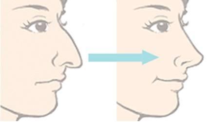 <美莱>打完瘦脸针后的注意事项都有哪些?