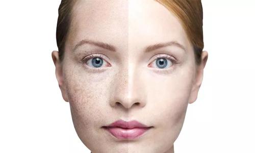 在美莱做韩式隆鼻恢复时是多久,多少天消肿恢复自然?