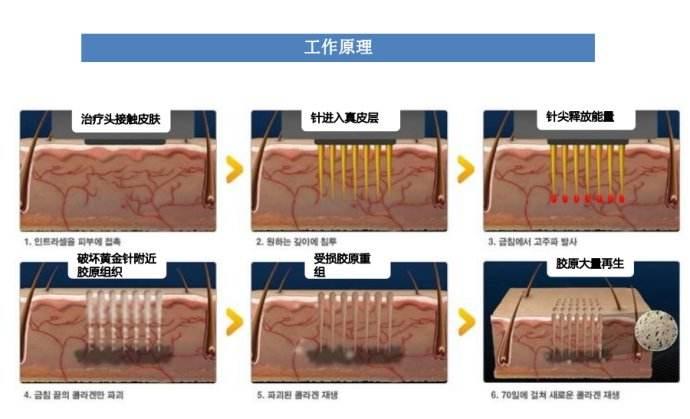 上海正规医院做双眼皮手术的危害大吗
