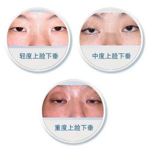 上海做注射祛皱美莱玻尿酸除皱大约的价格是多少