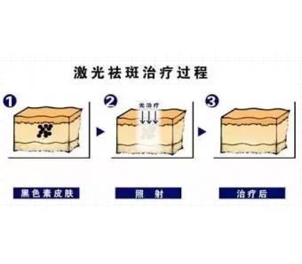 美莱微整形:都是玻尿酸,水光针和填充用的什么差别