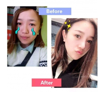 上海美容医院打瘦脸针的危害你知道多少?