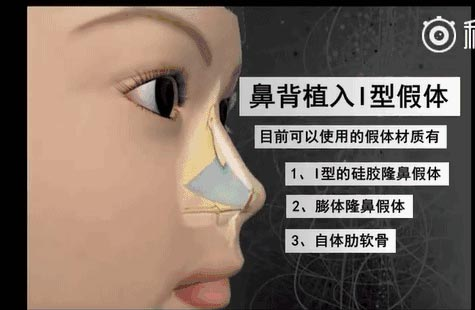 上海假体隆胸和自体脂肪隆胸的适用人群〢分别是什么呢?