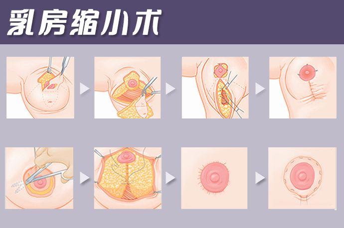 美莱VISIA皮肤检测仪∥可对皮肤进行定量分析!