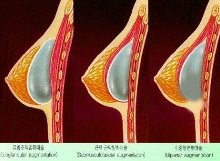 美莱注射瘦腿针的过程是怎样的?