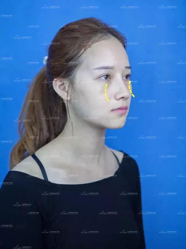 上海激光祛斑反黑正常吗?