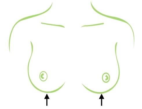 上海美莱胸部医师告诉您~吸脂丰胸失败修复哪里好
