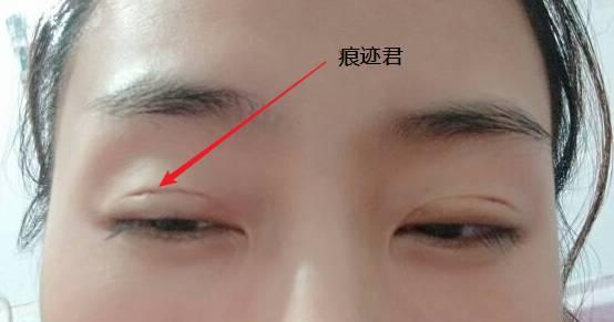 美莱吴海龙告诉我们,割韩式双眼皮需要多少钱
