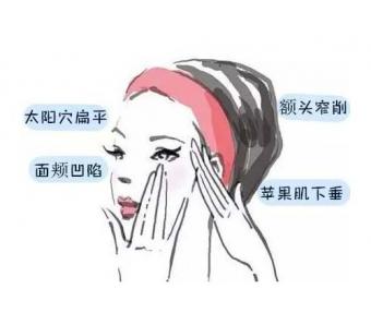 上海祛斑邱阳告诉您:黄褐斑怎么去除
