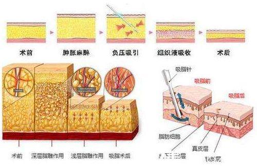 在上海这个城市,割双眼皮哪家医院好?