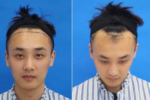 上海注射瘦脸针医院价格贵不贵,选择美莱多优惠!