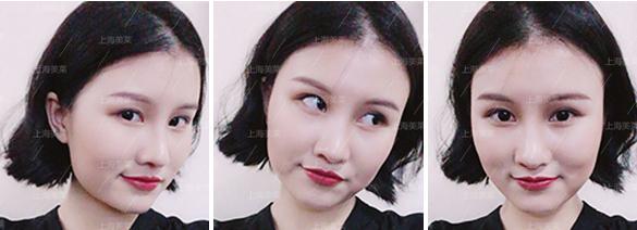 上海美莱何祥龙科普:眼部祛眼袋手术究竟多少钱
