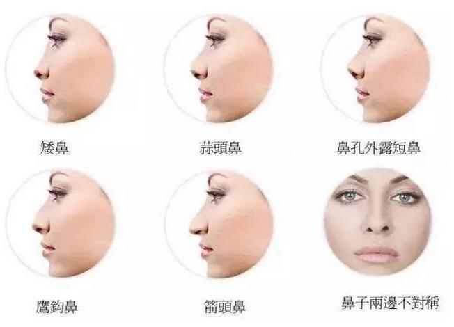 上海美莱科普|上海割双眼皮多少钱?疼不疼?