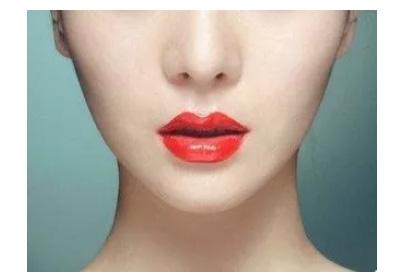 美莱医生给您科普:耳软骨隆鼻的优势是什么?