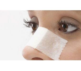 变美鼻子做隆鼻手术安全吗,美莱如何看!