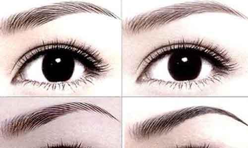 美莱医生告诉你:双眼皮修复的价格贵不贵?