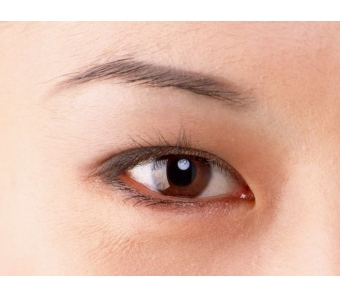 上海割双眼皮几天能消肿?
