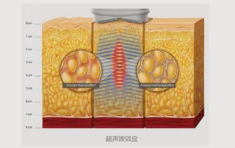 副乳存在—女人噩梦!上海美莱帮您快速去除副乳!