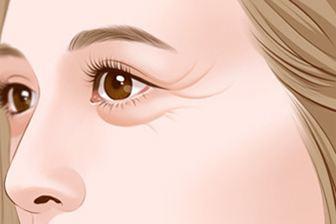 美莱医生告诉你:鼻翼缩小术有后遗症吗?