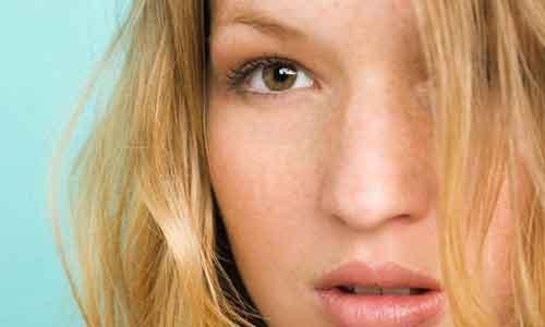 美莱注射玻尿酸隆鼻多久消肿?