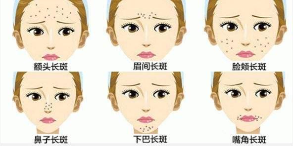 美莱告诉我们:上海爱贝芙丰太阳穴怎么样,效果如何